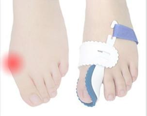 Ночной выпрямление хряща большого пальца ног