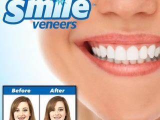 Улыбка на миллион долларов. Виниры на зубы Perfect Smile Veneers